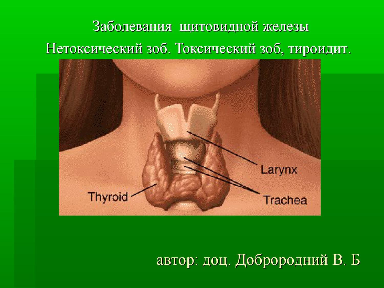 Эутироидный фото