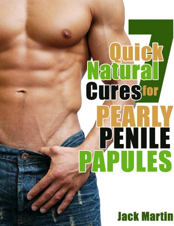 Penis injury natural cures