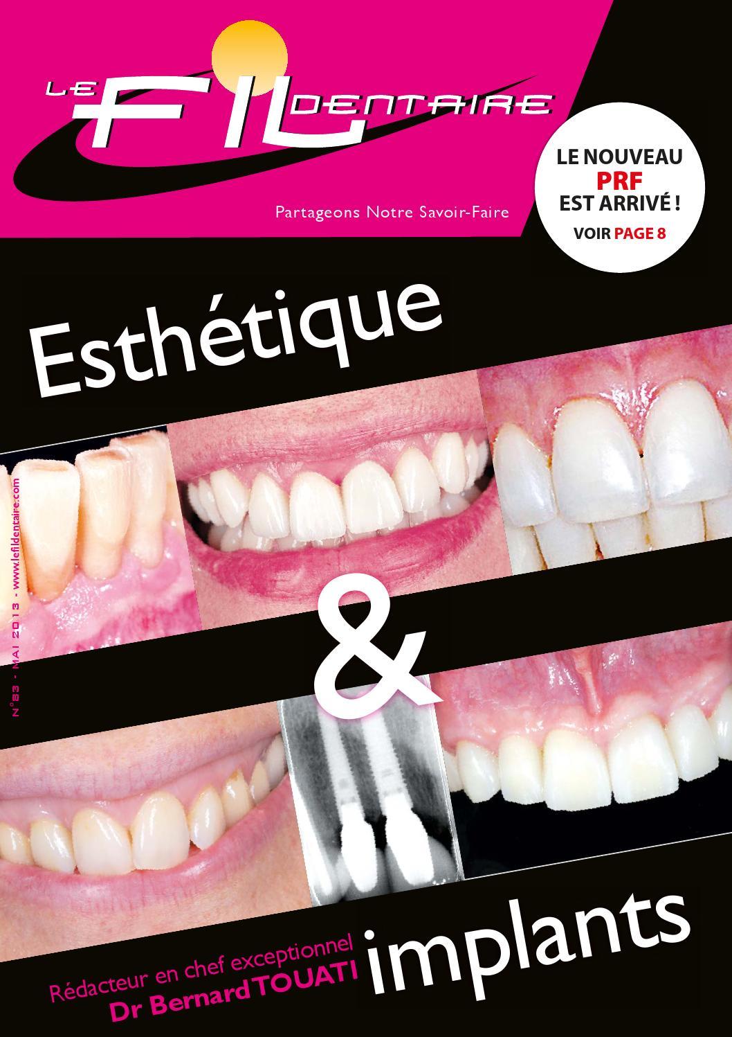 Le fil dentaire n°83: Esthétique et implants by Yassine Weslati ...