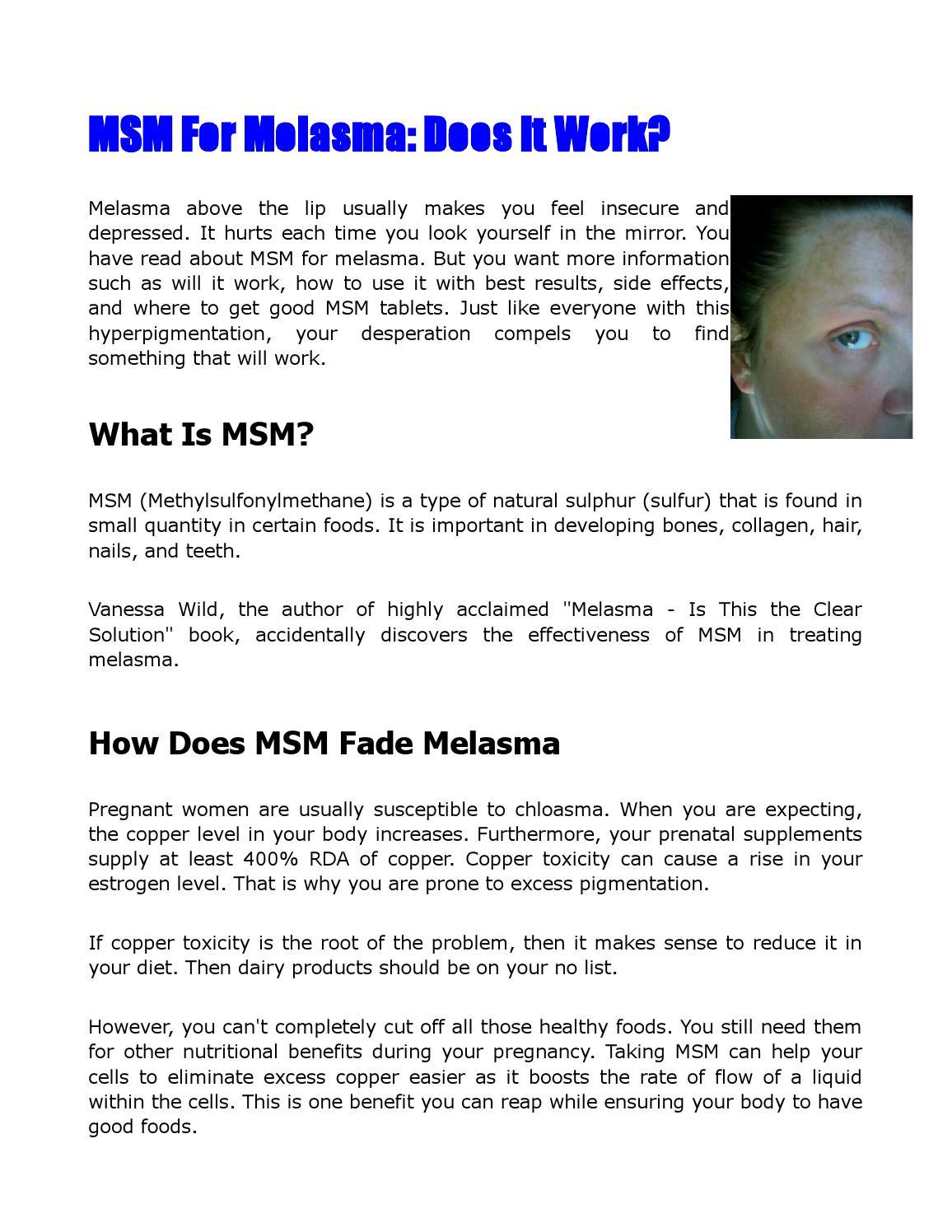 Msm for melasma