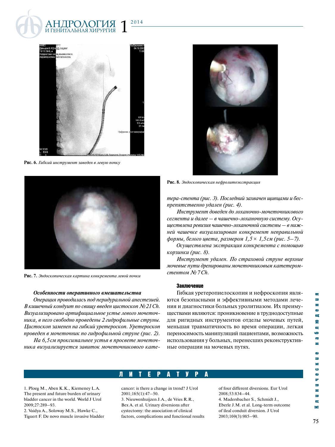 kontsentratsiya-spermi