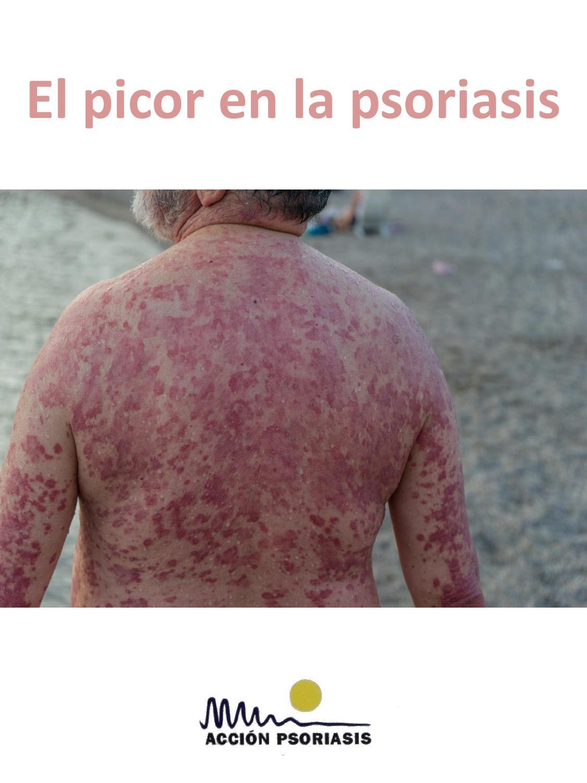 El foro sobre el tratamiento de la psoriasis en los sanatorios
